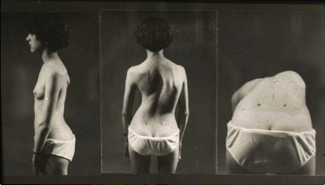 Test d'Adams - dépistage scoliose - Michel Guillaumat - Fondation Yves Cotrel-Institut de France