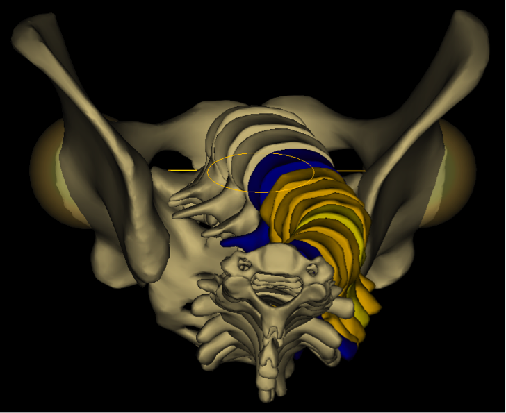 système EOS - reconstruction 3D - colonne vertébrale - scoliose idiopathqiue - Geroges Charpak - Fondation Yves Cotrel-Institut de France