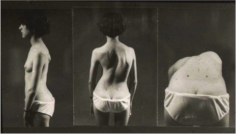 Adams test - scoliosis screening - Michel Guillaumat - Yves Cotrel-Institut de France Foundation